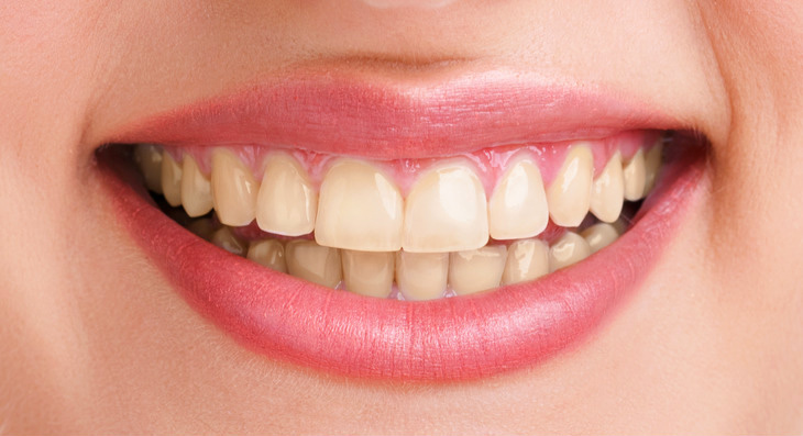 Before-The Power Of Whitening