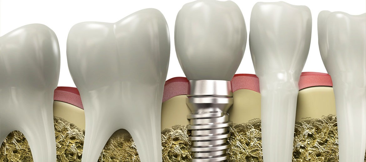 dental-implants-jacksonville-florida-dentists-alicia-matayoshi